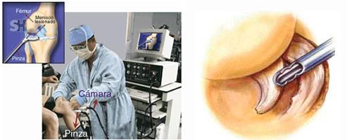 Se puede andar despues de una artroscopia