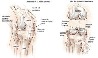Operacion artroscopia rodilla recuperacion android games - Dolor en la parte interior de la rodilla ...